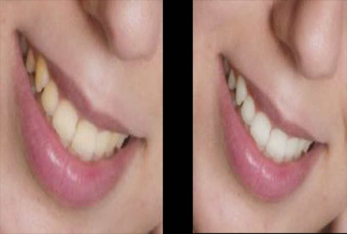 Whiten Teeth on Any Photo AMAZING Touch Up